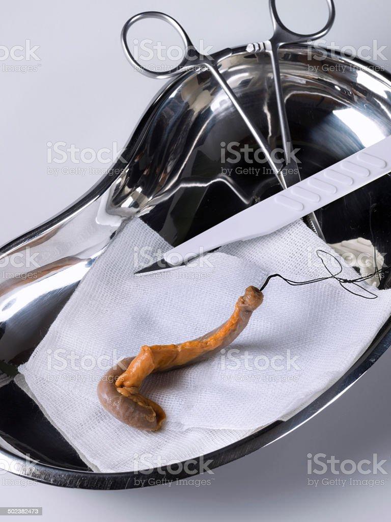 Human appendix stock photo