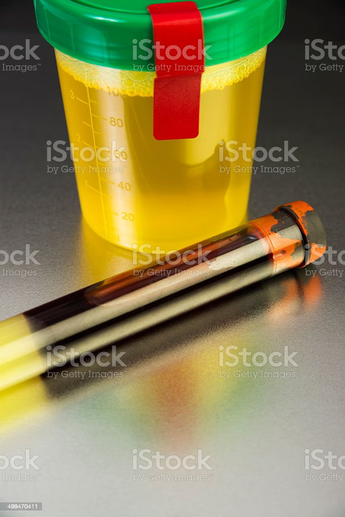 Human Blood and Urine Samples for testing stock photo