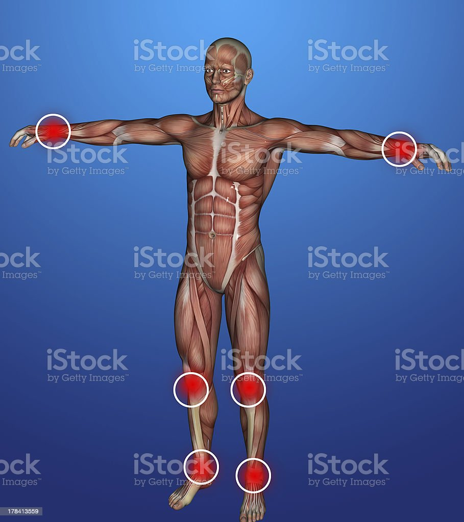 human body  inflammation royalty-free stock photo