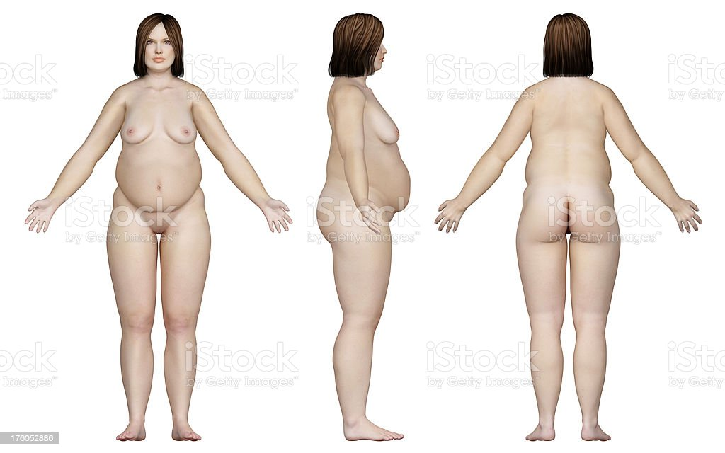 Human body of a overweight woman, for study royalty-free stock photo