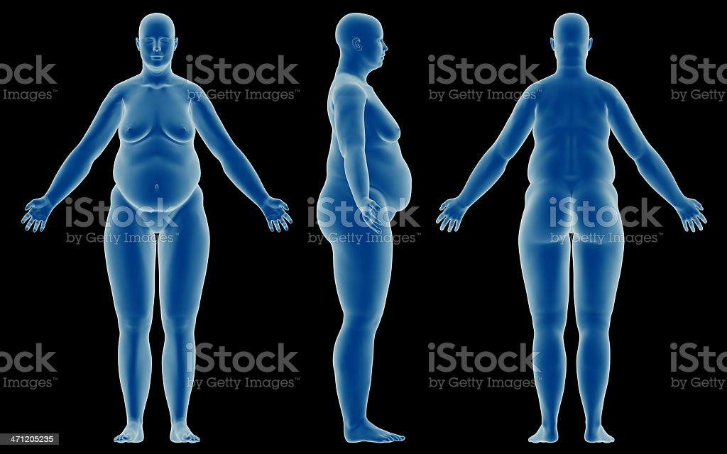 Fotografía de Cuerpo Humano De Una Mujer Con Sobrepeso Para El ...