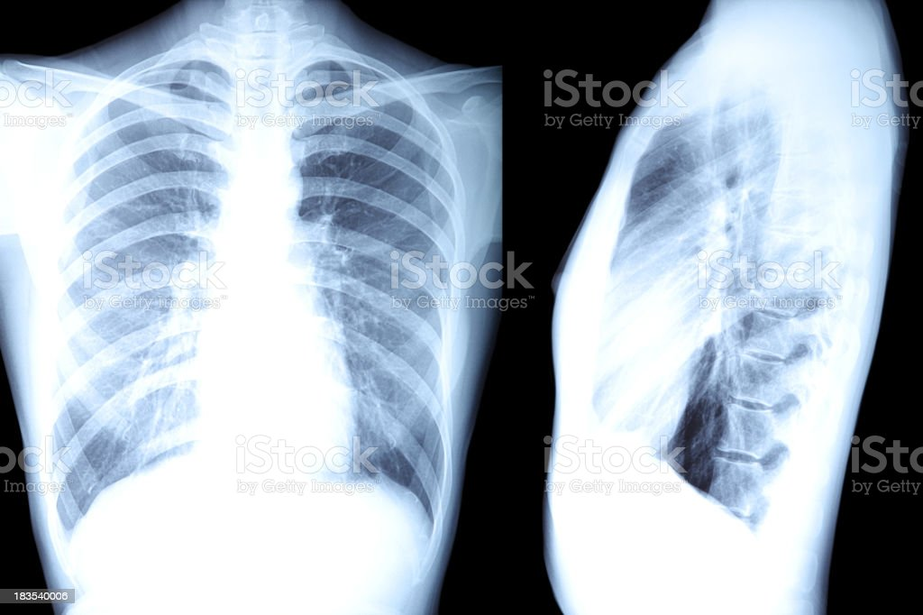 Human Body X-Ray - XXXLarge royalty-free stock photo