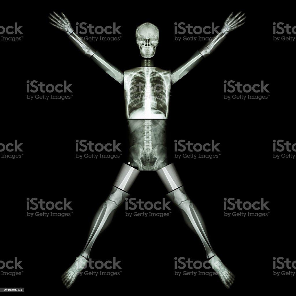 Hueso humano es de estiramiento brazo y pierna - foto de stock
