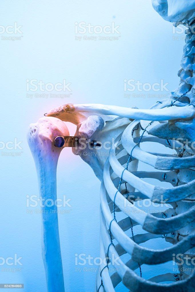 Menschliche Knochenmarkstruktur Schulterknochen Schmerzen ...