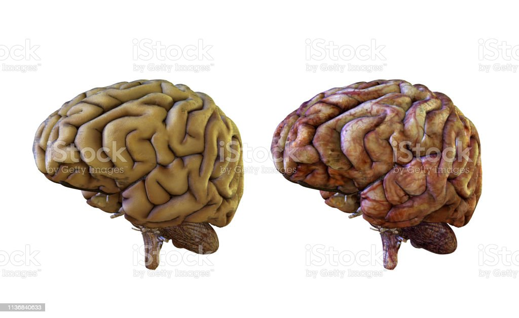 Human brain comparison healthy and inflamed, damaged stock photo