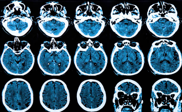 human brain MRI scan of the human brain corpus callosum stock pictures, royalty-free photos & images
