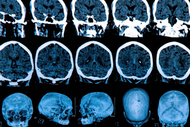 human brain MRI scan of the human brain neurodegeneration stock pictures, royalty-free photos & images