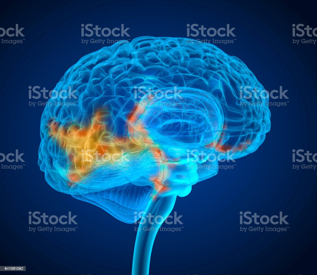 Human brain tumor X-ray scan , Medically accurate 3D illustration stock photo