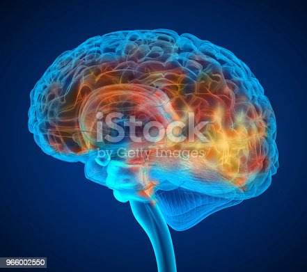 istock Human brain tumor X-ray scan , Medically accurate 3D illustration 966002550