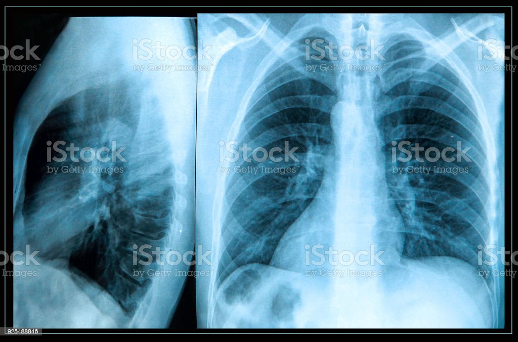 human chest stock photo