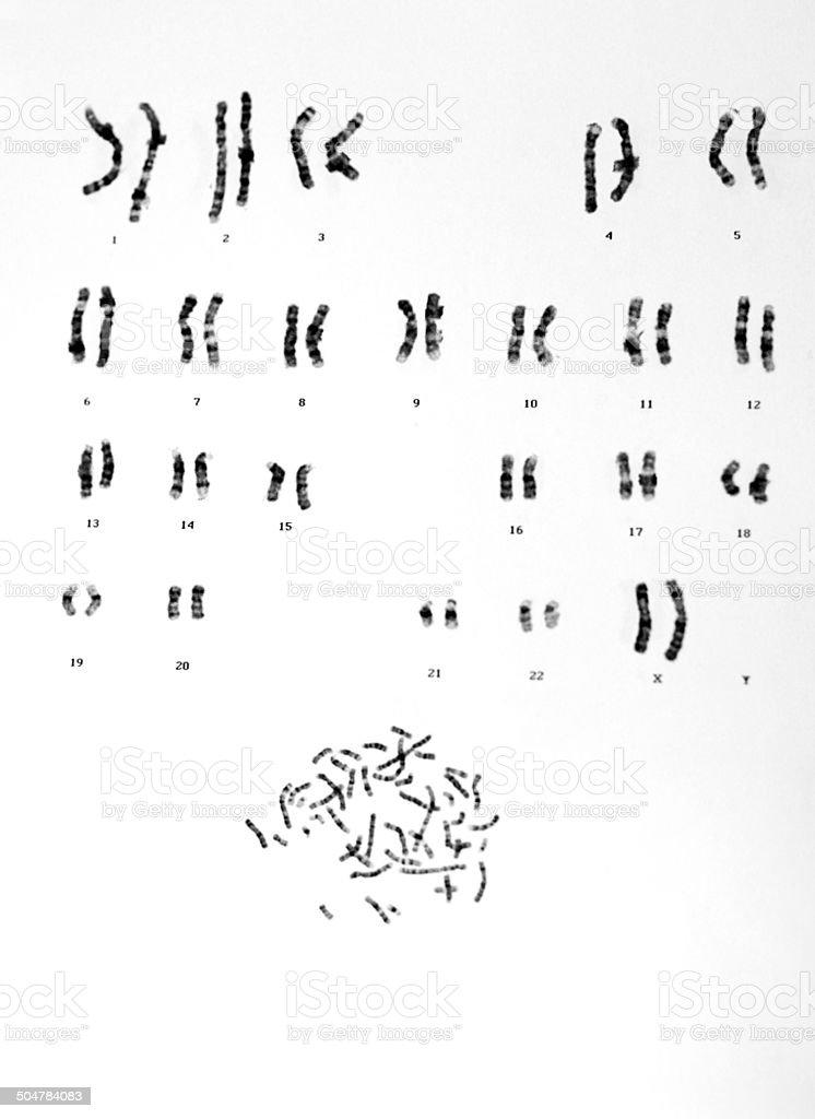 Human Chromosomes stock photo