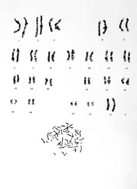 human chromosomes - chromosoom stockfoto's en -beelden