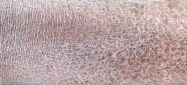 istock human dry skin 1156764387