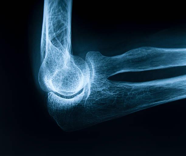 Human elbow bone stock photo