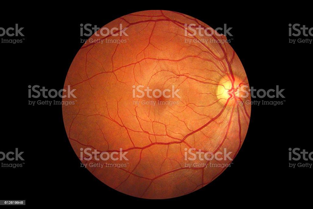 Human Eye Anatomy Retina Optic Disc Artery And Vein Etc Stock Photo