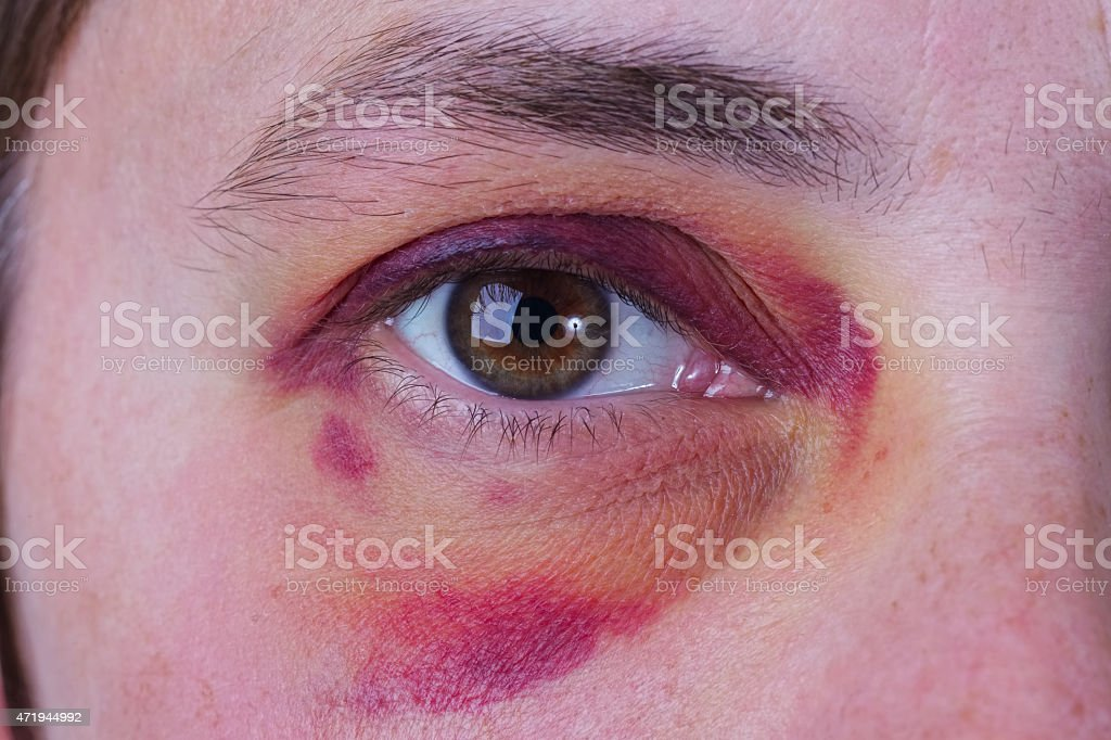 Human eye with a large bruise stock photo