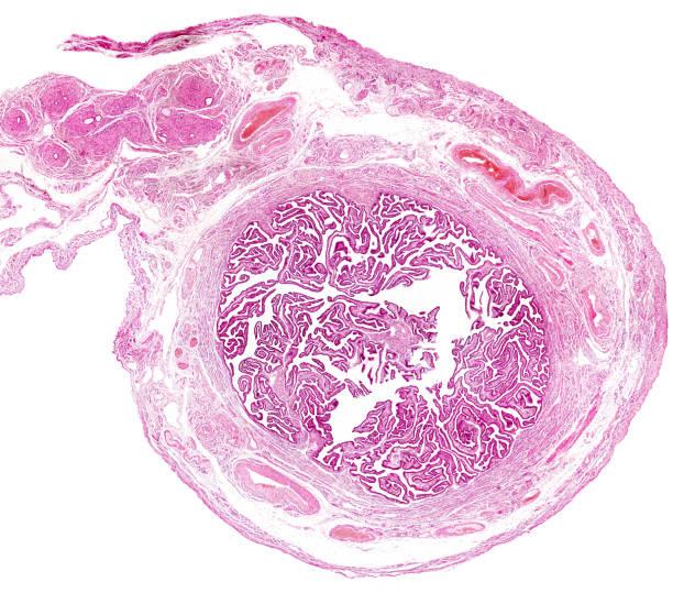 Human fallopian tube stock photo