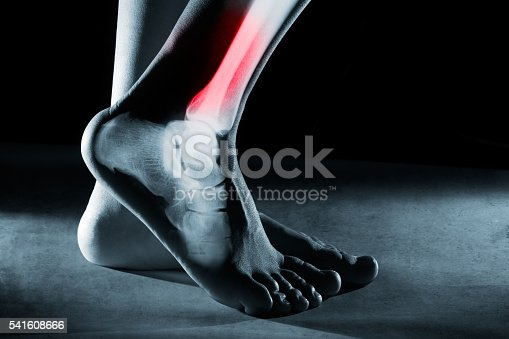 istock Human foot ankle and leg in x-ray 541608666