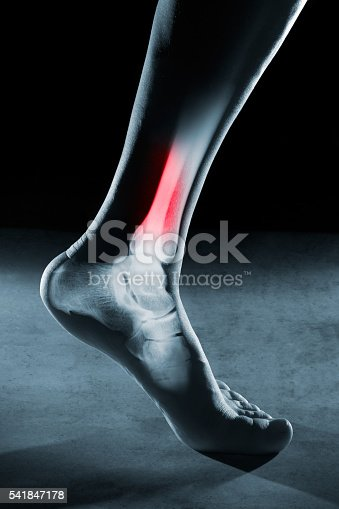 istock Human foot ankle and leg in x-ray 541847178