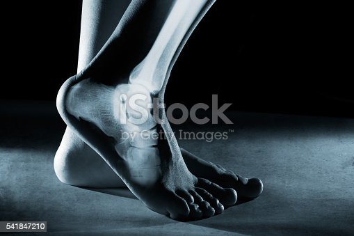 istock Human foot ankle and leg in x-ray 541847210