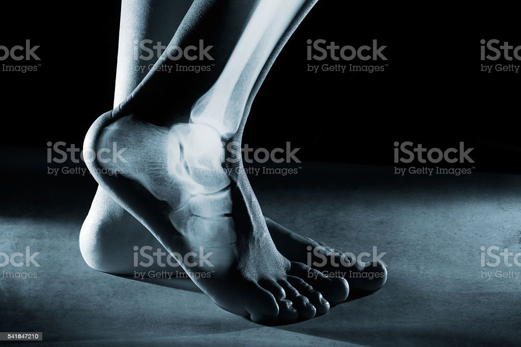 Human foot ankle and leg in x-ray stock photo