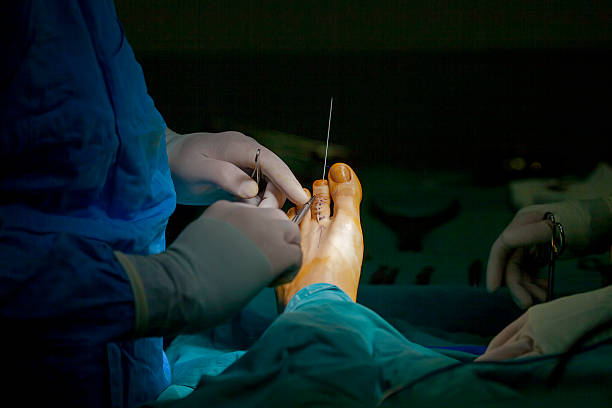 Human Foot Operation Human Foot Operation. deem stock pictures, royalty-free photos & images