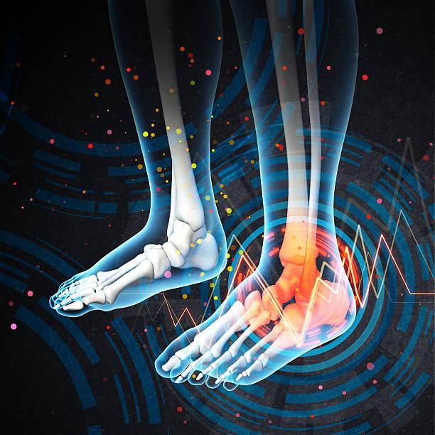 Menschlicher Fuß Schmerzen mit der Anatomie der ein Skelett Fuß – Foto