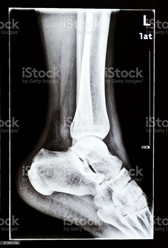 Human Foot Xray stock photo | iStock