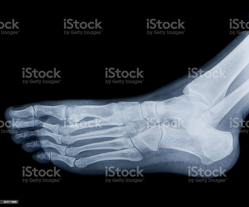 Human Foot Xray Stock Photo Istock