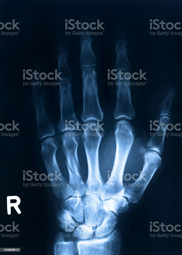 Human hand bone royalty-free stock photo