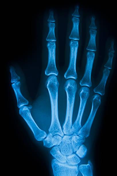 menschliche handbone - skelett hand stock-fotos und bilder