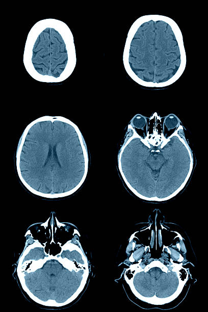 Human head on CT scans Normal head and brain on computed tomography images irradiation stock pictures, royalty-free photos & images