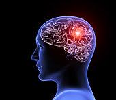 istock Human headache migraine 1152463893