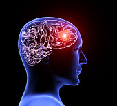 istock Human headache migraine 1159642786