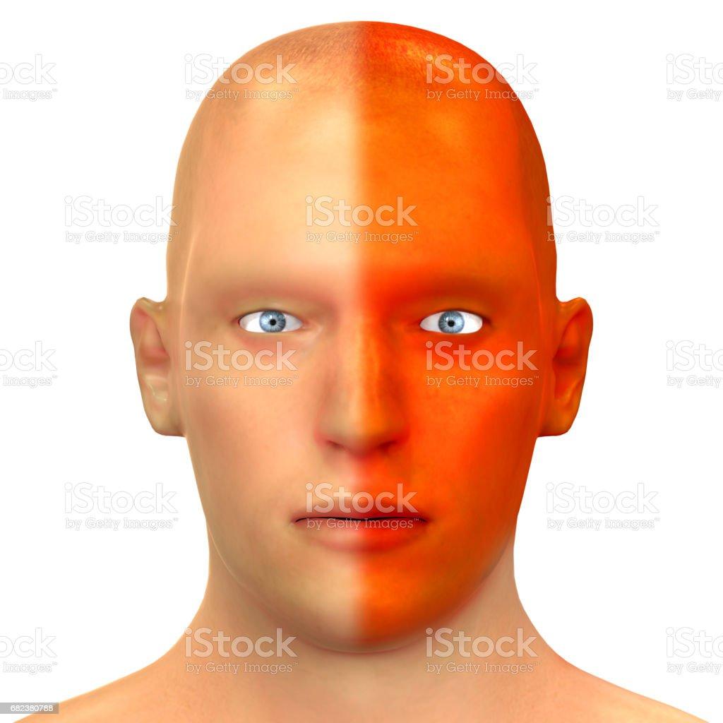 Types de Headeche humaine d'anatomie (Migraine) photo libre de droits