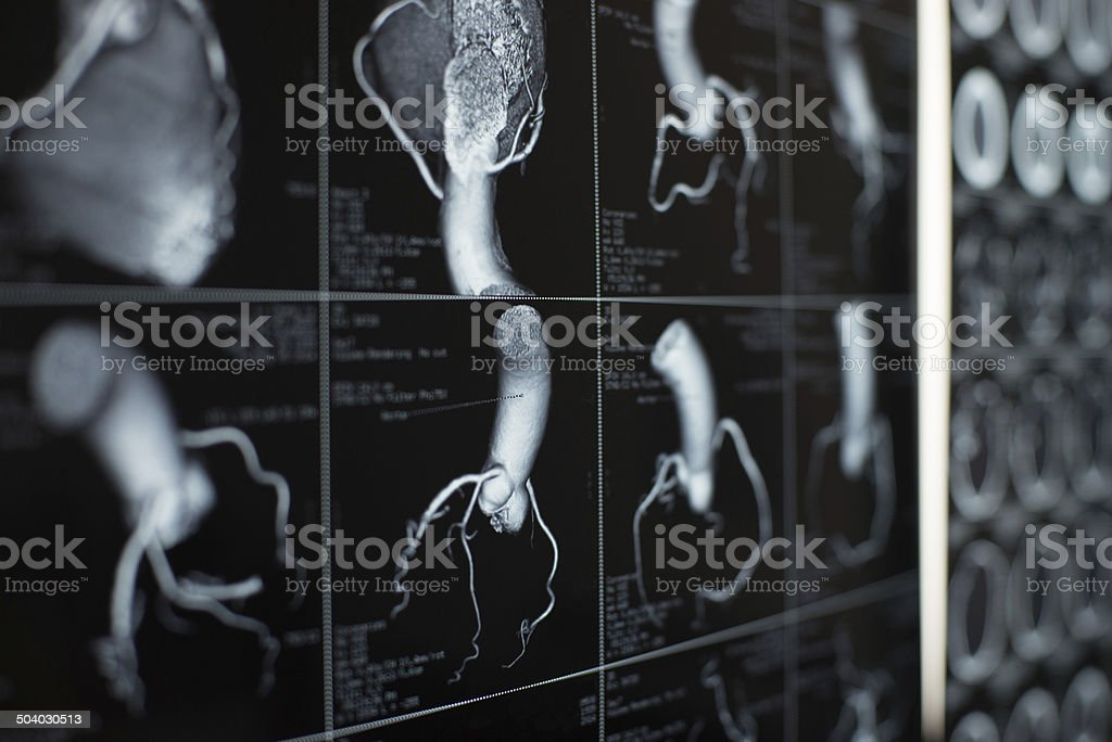 human heart and coronary artery  images stock photo
