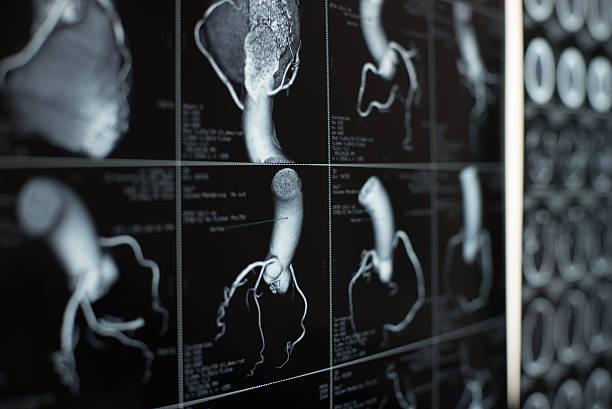 Menschliches Herz und Kranzschlagader Bilder – Foto