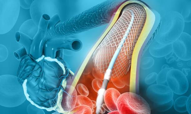Human heart angioplasty stock photo