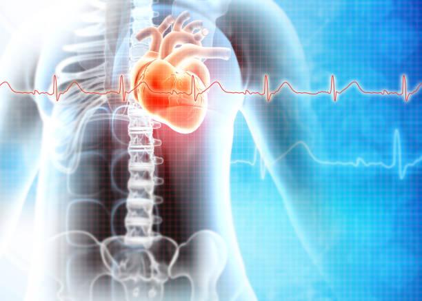 Human heart attack. Heart Disease stock photo
