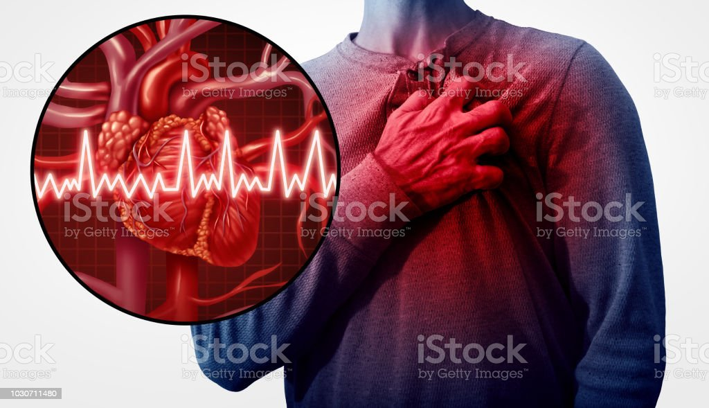 Human Heart Attack stock photo