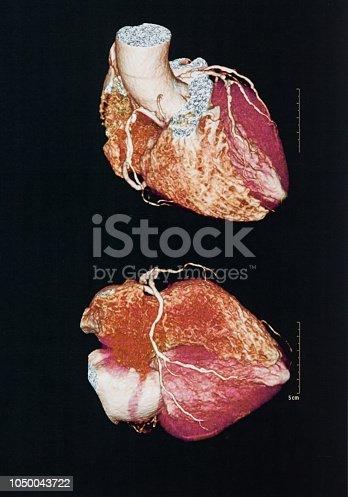 183306794 istock photo Human heart 1050043722
