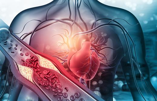 Human heart with blocked arteries. 3d illustration