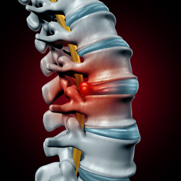 Human Herniated Disk Human herniated disk concept and spine pain diagnostic as a human spinal system symbol as medical health problem and anatomy symbol with the skeletal bone structure and intervertebral discs closeup as a 3D illustration. spine body part stock pictures, royalty-free photos & images