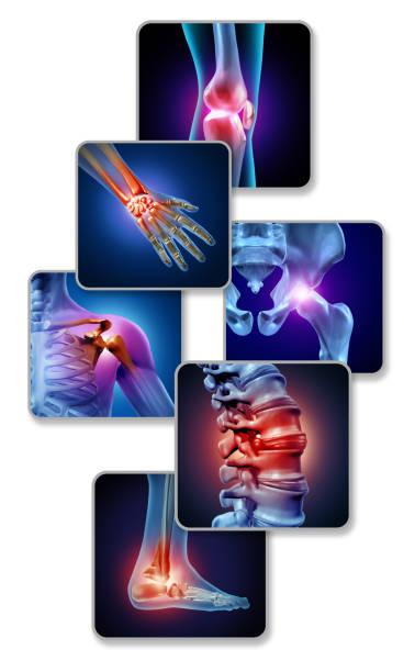 Human Joint Pain stock photo