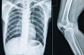 Human knee and Thoracic cavity X-ray Film