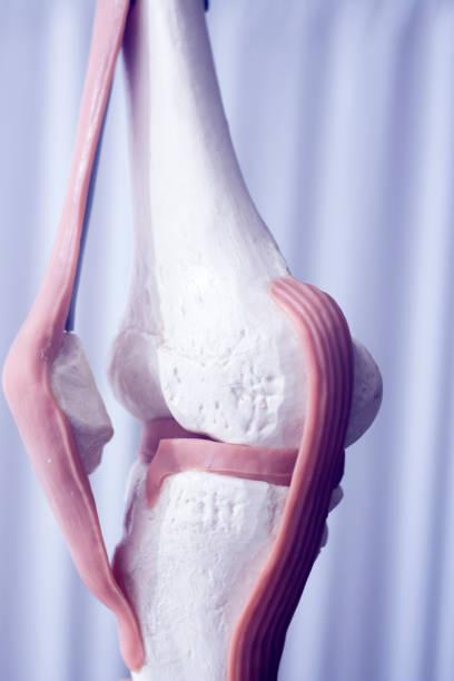 mänskliga knä gemensamma menisken medicinsk undervisning modell visar ben och främre korsband ledband senor. - knäskål bildbanksfoton och bilder