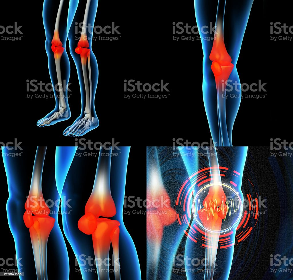 Human Knee Pain With The Anatomy Of A Skeleton Leg Stock Photo