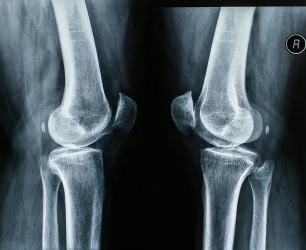human leg joints, knee x-ray films - menisco foto e immagini stock