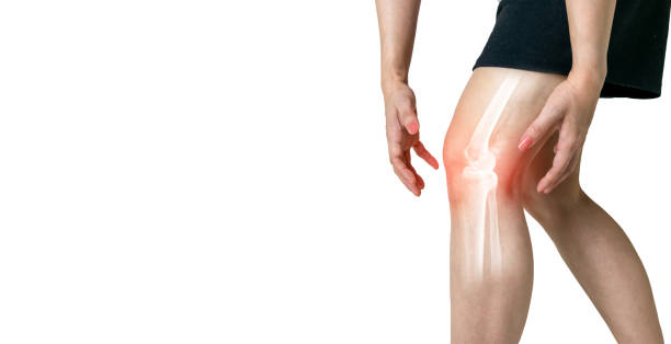 Human leg Osteoarthritis inflammation of bone joints on white background stock photo