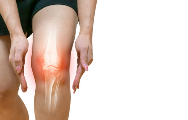 Human leg Osteoarthritis inflammation Of bone joints stock photo